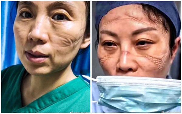 [Trong những bức ảnh cho thấy, những vết lõm hằn sâu trên da vì đeo khẩu trang đã gây ra vết thương, lở loét.