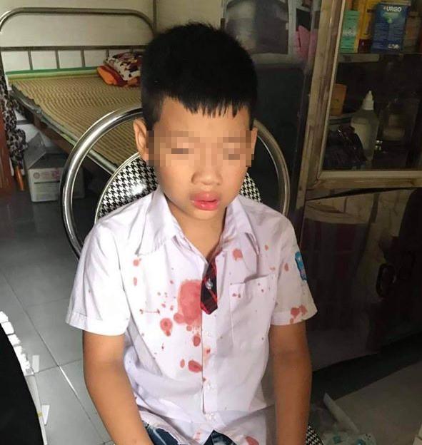 Cháu Nguyễn Gia K sau khi bị phụ huynh của bạn hành hung. Ảnh: Tây Bắc 24H