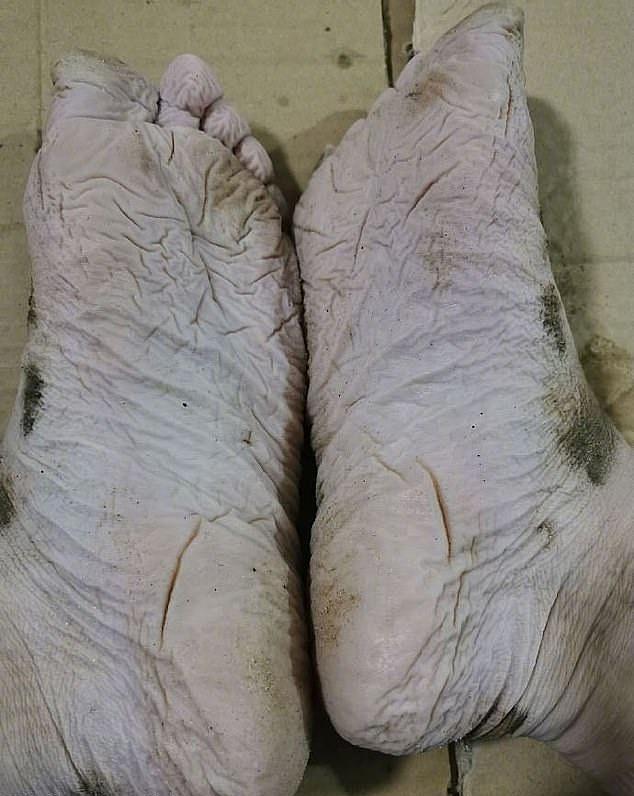 Đôi chân nhăn nhúm đáng sợ và phồng rộp của người lính cứu hỏa trong vụ sạt lở đất. Ảnh: AFP.