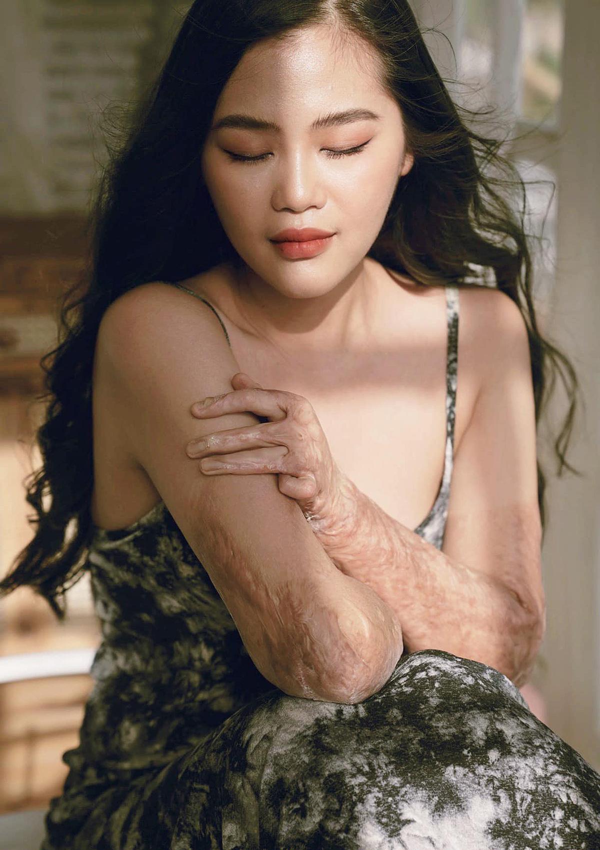 Lý Đài Trang của hiện tại với những vết sẹo bỏng trên da.