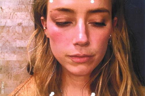 Hai bức ảnh khuôn mặt bầm tím của Heard sau khi bị Depp ném điện thoại vào mặt.