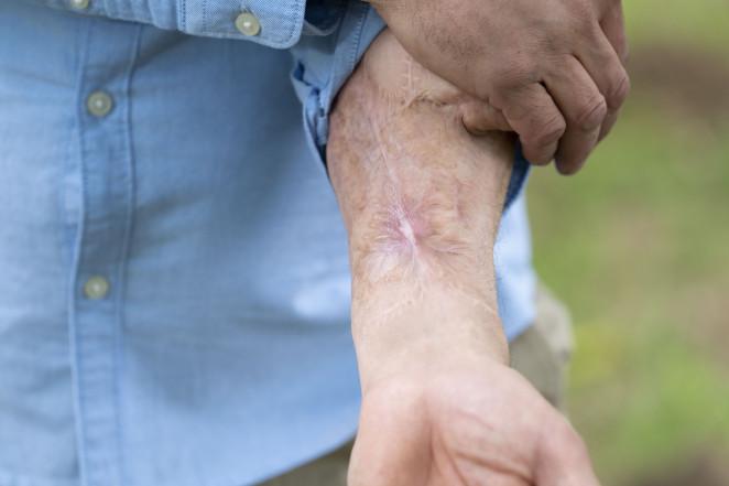 Người đàn ông mất 'của quý' vì nhiễm trùng máu được cấy một cái mới lên cánh tay - 2