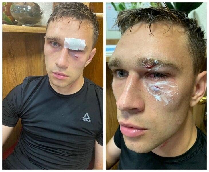 Trọng tài Nikita Danchenko đăng tải hình ảnh bản thân sau vụ tấn công.