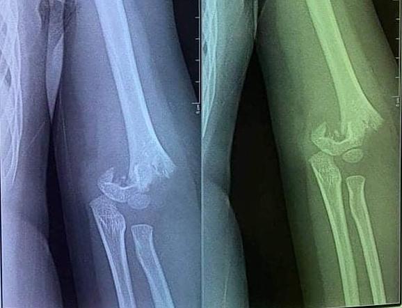 Hình ảnh chụp xương khuỷa tay của cháu T bị gãy lìa. Ảnh: Gia đình cung cấp