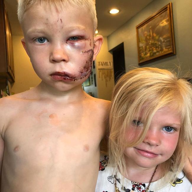 Cậu bé Bridger Walker với vết thương trên mặt sau khi cứu em gái.