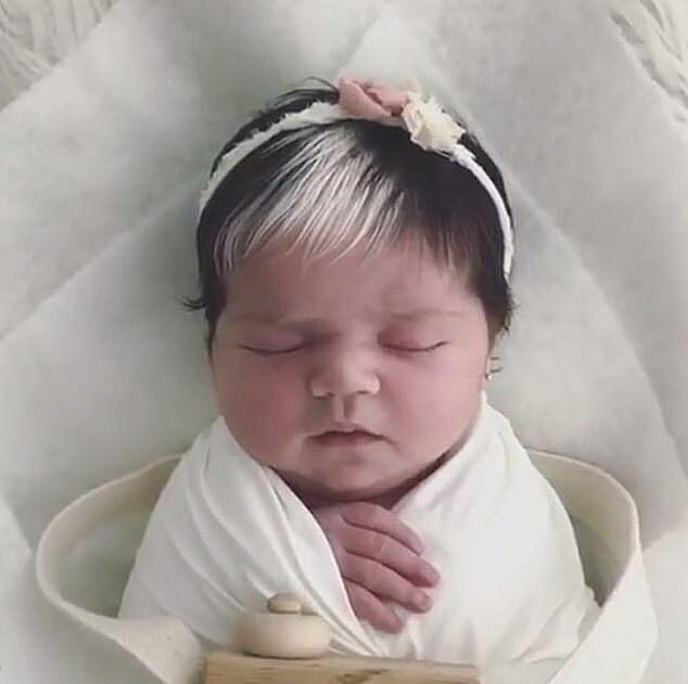 Bé gái sinh ra với mái tóc trắng một nửa hệt phiên bản hoạt hình Disney