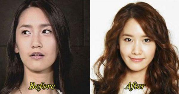 Ngay cả nữ thần Yoona mà cũng dao kéo kìa, Aespa PTTM thì đã sao?