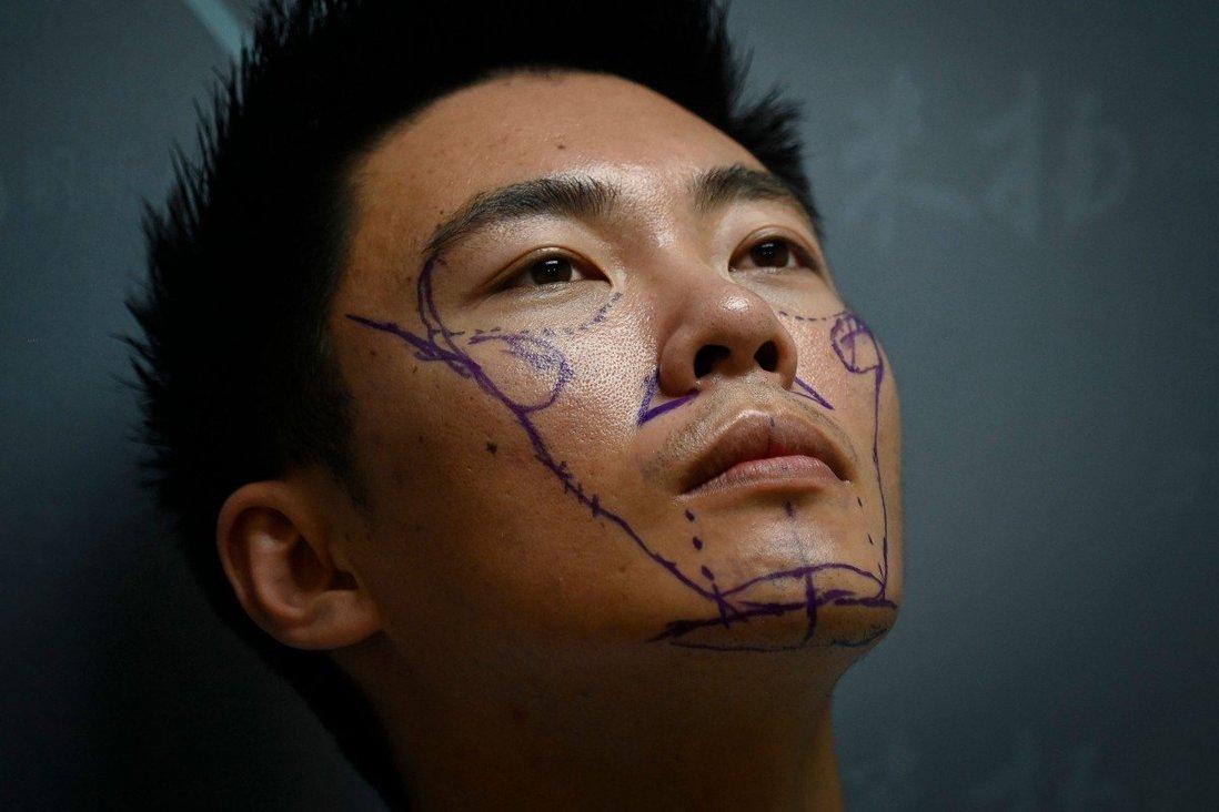 Xia Shurong chuẩn bị trước khi phẫu thuật thẩm mỹ tại một phòng khám ở Bắc Kinh. Ảnh: AFP