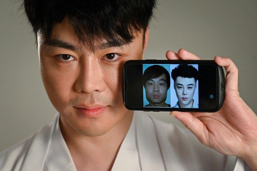 Nai Wen khoe ảnh trước và sau khi phẫu thuật thẩm mỹ, anh thực hiện 60 thủ thuật trên gương mặt.